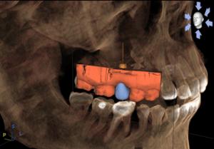 implant-dentistry-300x209