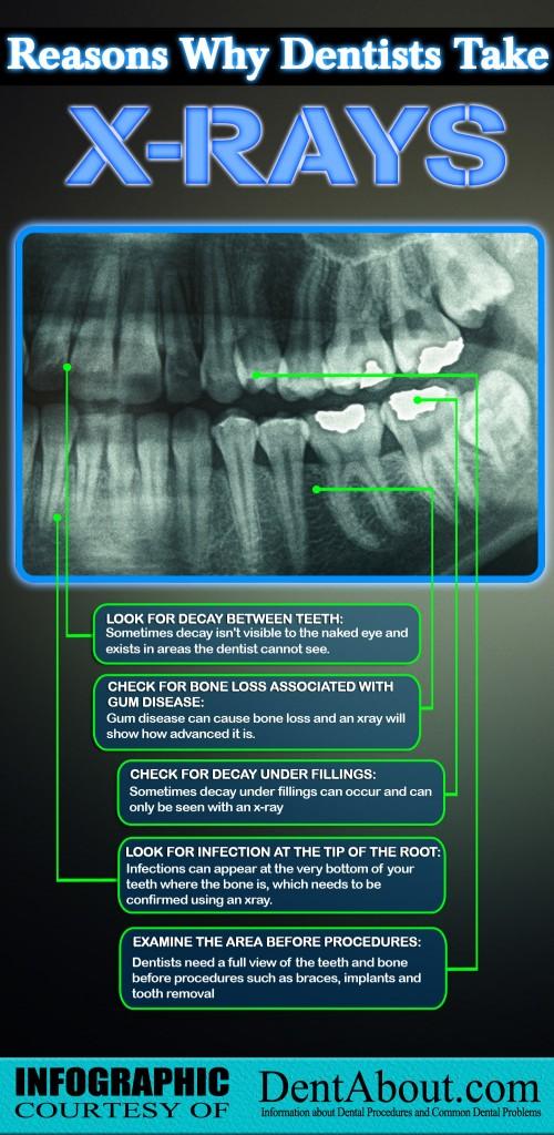 why-dentists-take-xrays-500x1024